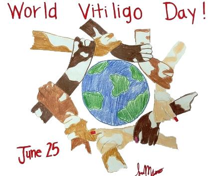 vitiligo day